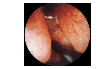 产生鼻息肉的病因有哪些