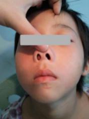 鼻息肉的危害表现在哪里