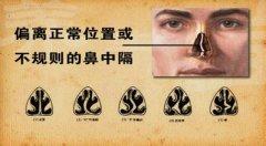 鼻中隔偏曲的检查诊断有哪些
