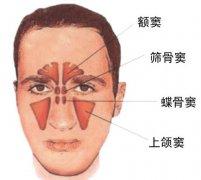 鼻窦炎怎么治疗好,你的治疗方法对吗?