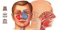 经常流鼻血,检查才知是鼻中隔偏曲