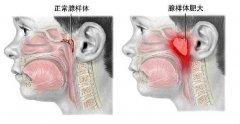 专家解析:2种治疗腺样体肥大的方法