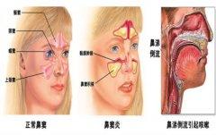 鼻窦炎的脓排出才会好吗