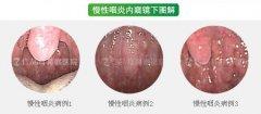 [心酸]六旬老太患慢性咽炎拒绝治疗 原因竟是...