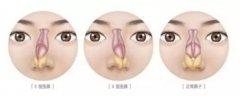 【科普】关于鼻中隔偏曲的知识都在这里
