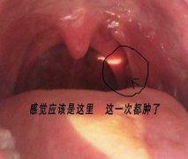 喉咙有异物感