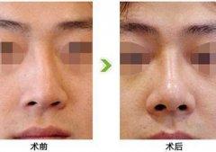 鼻中隔偏曲手术需要多少钱