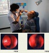过敏性鼻炎用哪些中药膏