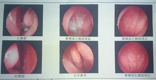 南京过敏性鼻炎的治疗方法