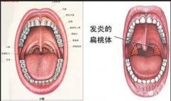 扁桃体炎是由哪些原因引起的