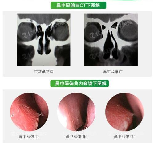 在南京治疗鼻中隔偏曲选择哪种方法好